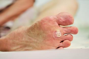papilloma on foot